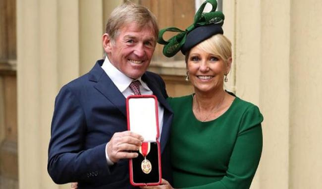 Legenda Liverpool Kenny Dalglish Positif Virus Corona