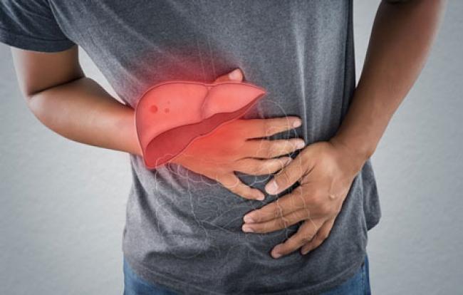 Mengenal Lebih Jauh Tentang Hepatitis Akut